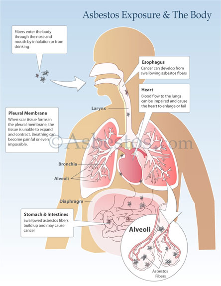 Asbestos Exposure Signs, Symptoms & Risks