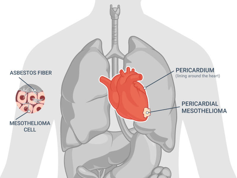 Pericardial Mesothelioma Cancer Life Expectancy Survival Rate By Stages Cardiac Mesothelioma Mesothelioma 2020