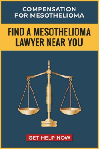 Find a Mesothelioma Lawyer Near Me